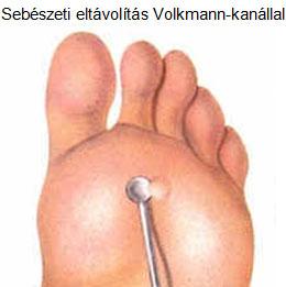 szemölcs kezelése)